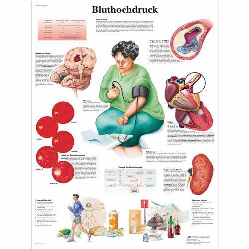 Bluthochdruck, 4006601 [VR0361UU], système cardiovasculaire
