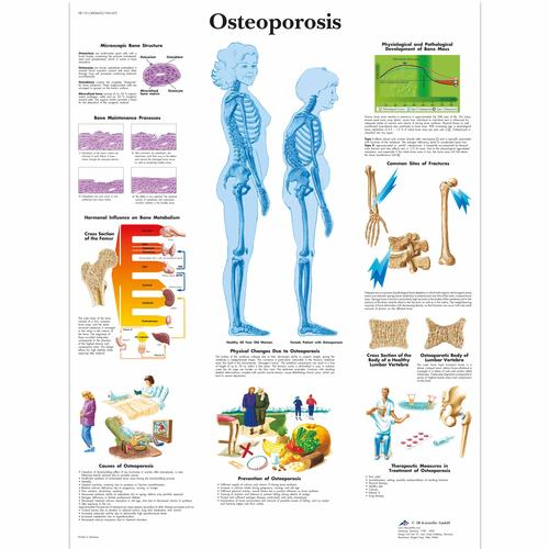 Osteoporosis, 4006653 [VR1121UU], système Squelettique