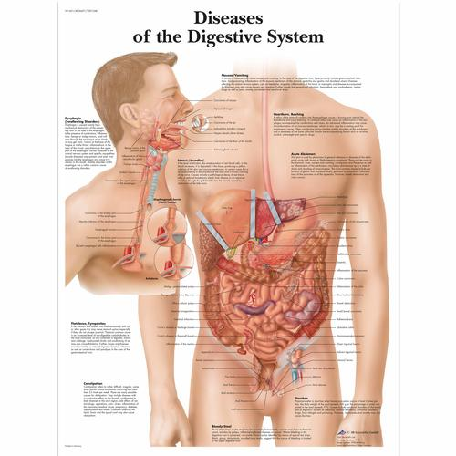 Diseases of the Digestive System, 4006691 [VR1431UU], Système digestif