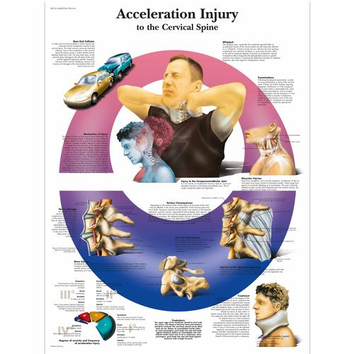 Acceleration Injury to the Cervical Spine, 4006724 [VR1761UU], système Squelettique