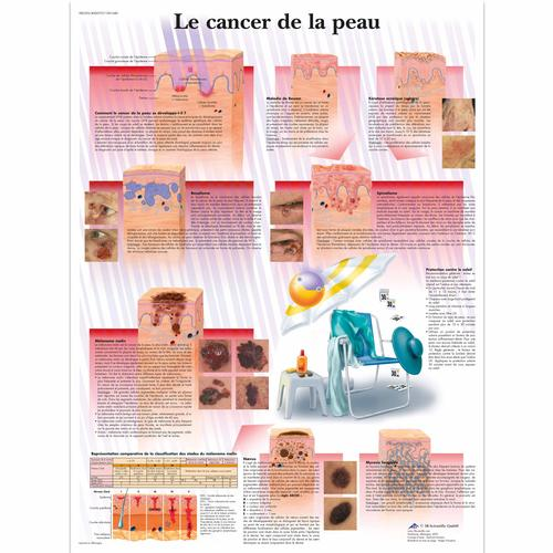 Le cancer de la peau, 1001680 [VR2295L], Cancers