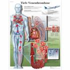 Tiefe Venenthrombose, 4006603 [VR0368UU], système cardiovasculaire