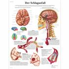 Der Schlaganfall, 4006630 [VR0627UU], système cardiovasculaire