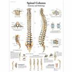Spinal Column - Anatomy and Pathology, 1001480 [VR1152L], système Squelettique