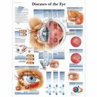 Diseases of the Eye, 1001498 [VR1231L], Yeux