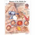 Diseases of the Middle Ear, 4006670 [VR1252UU], Oreille, nez et gorge