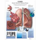 COPD Chronic Obstructive Pulmonary Disease, 4006678 [VR1329UU], Système Respiratoire