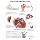 VR1343UU: Common Cardiac Disorders Chart