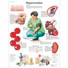 Hypertension, 4006683 [VR1361UU], système cardiovasculaire