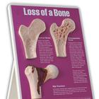 W43124: Loss of Bone Easel Display
